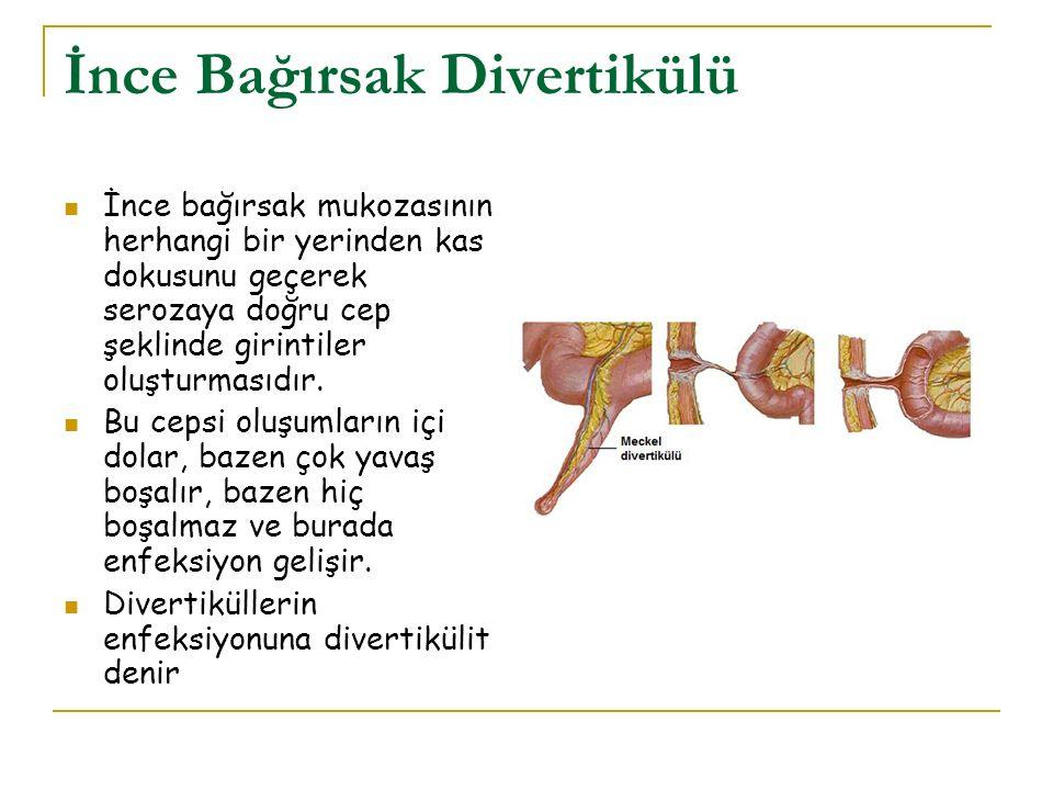 İnce Bağırsak Divertikülü İnce bağırsak mukozasının herhangi bir yerinden kas dokusunu geçerek serozaya doğru cep şeklinde girintiler oluşturmasıdır.