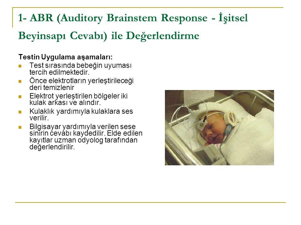 Testin Uygulama aşamaları: Test sırasında bebeğin uyuması tercih edilmektedir.