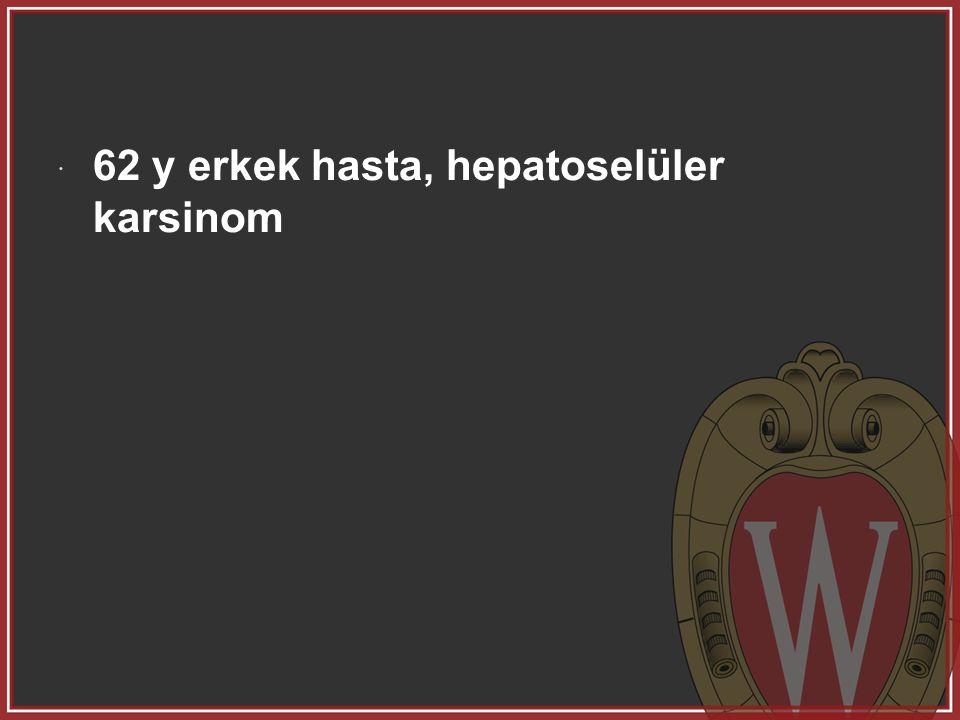  62 y erkek hasta, hepatoselüler karsinom