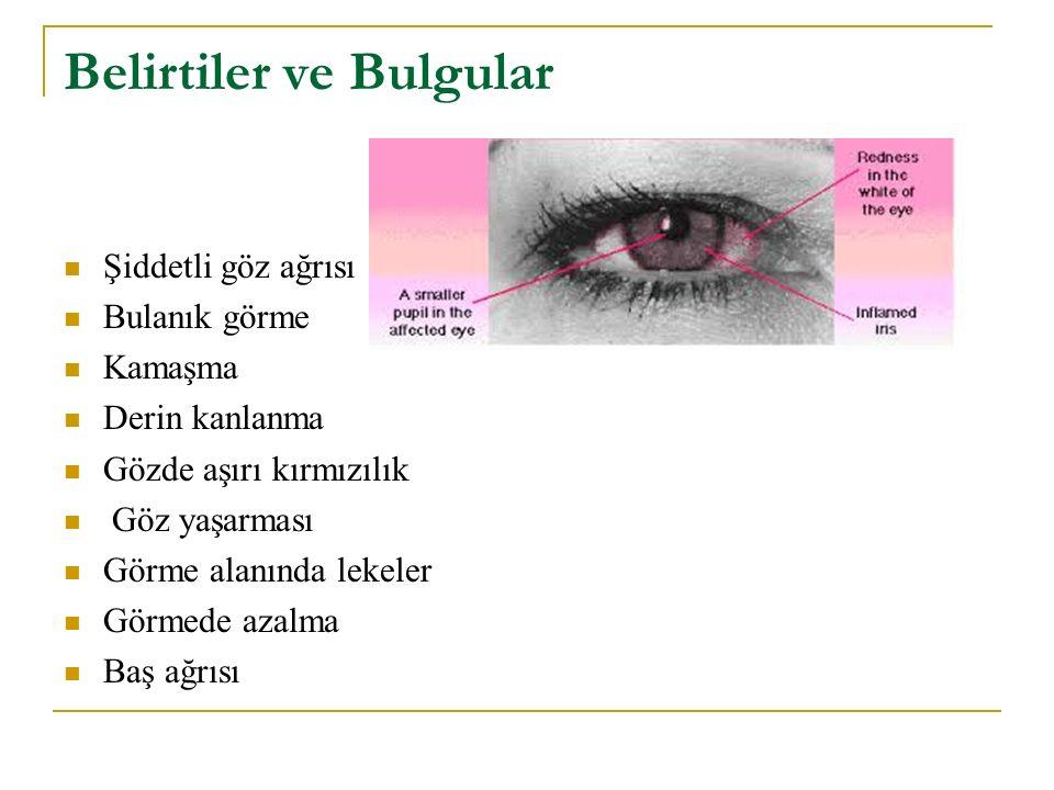 Belirtiler ve Bulgular Şiddetli göz ağrısı Bulanık görme Kamaşma Derin kanlanma Gözde aşırı kırmızılık Göz yaşarması Görme alanında lekeler Görmede az