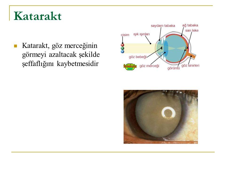 Katarakt Katarakt, göz merceğinin görmeyi azaltacak şekilde şeffaflığını kaybetmesidir