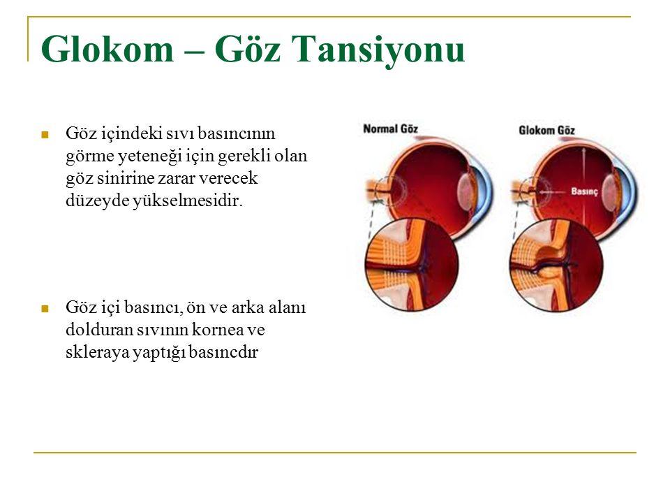 Glokom – Göz Tansiyonu Göz içindeki sıvı basıncının görme yeteneği için gerekli olan göz sinirine zarar verecek düzeyde yükselmesidir. Göz içi basıncı