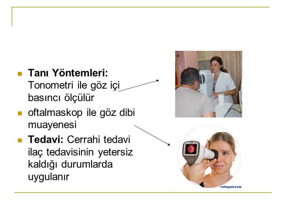 Tanı Yöntemleri: Tonometri ile göz içi basıncı ölçülür oftalmaskop ile göz dibi muayenesi Tedavi: Cerrahi tedavi ilaç tedavisinin yetersiz kaldığı dur