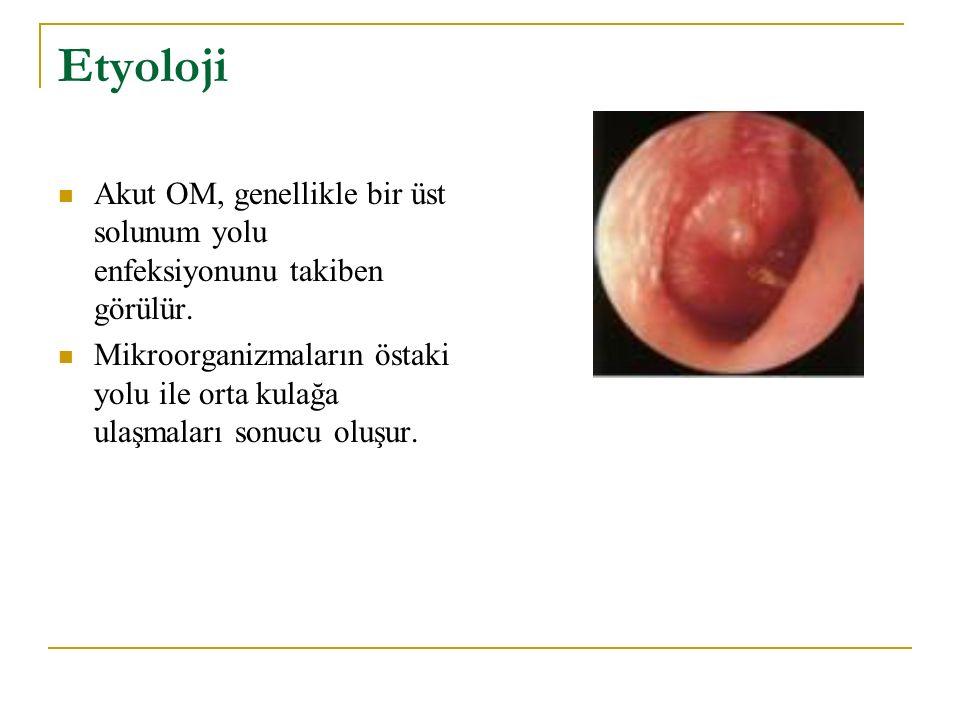Etyoloji Akut OM, genellikle bir üst solunum yolu enfeksiyonunu takiben görülür. Mikroorganizmaların östaki yolu ile orta kulağa ulaşmaları sonucu olu