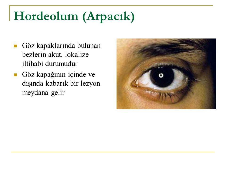 Hordeolum (Arpacık) Göz kapaklarında bulunan bezlerin akut, lokalize iltihabi durumudur Göz kapağının içinde ve dışında kabarık bir lezyon meydana gel