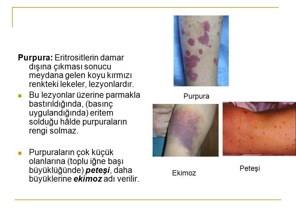 Purpura: Eritrositlerin damar dışına çıkması sonucu meydana gelen koyu kırmızı renkteki lekeler, lezyonlardır. Bu lezyonlar üzerine parmakla bastırıld