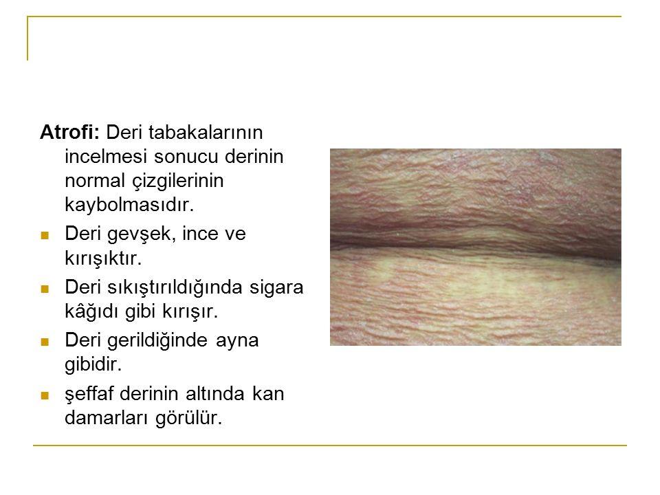 Atrofi: Deri tabakalarının incelmesi sonucu derinin normal çizgilerinin kaybolmasıdır. Deri gevşek, ince ve kırışıktır. Deri sıkıştırıldığında sigara