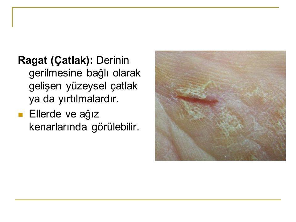 Ragat (Çatlak): Derinin gerilmesine bağlı olarak gelişen yüzeysel çatlak ya da yırtılmalardır. Ellerde ve ağız kenarlarında görülebilir.