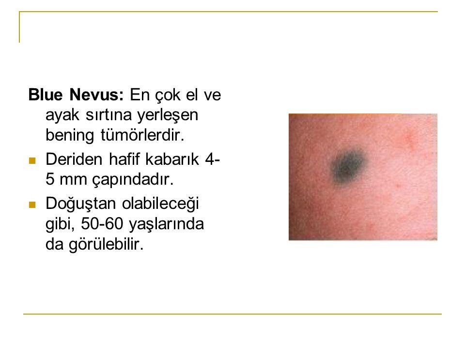 Blue Nevus: En çok el ve ayak sırtına yerleşen bening tümörlerdir. Deriden hafif kabarık 4- 5 mm çapındadır. Doğuştan olabileceği gibi, 50-60 yaşların