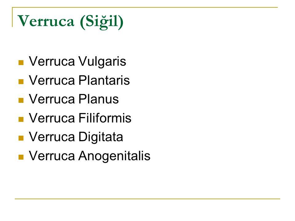 Verruca (Siğil) Verruca Vulgaris Verruca Plantaris Verruca Planus Verruca Filiformis Verruca Digitata Verruca Anogenitalis