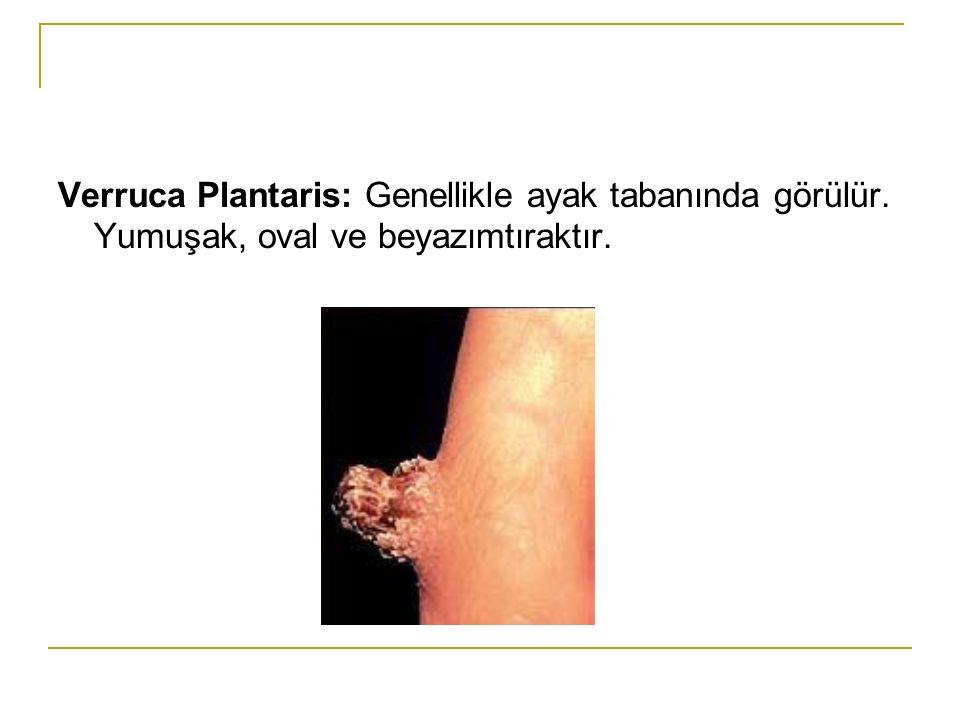 Verruca Plantaris: Genellikle ayak tabanında görülür. Yumuşak, oval ve beyazımtıraktır.