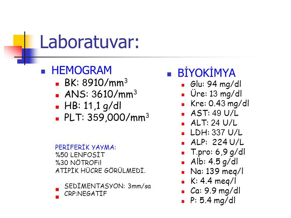 Laboratuvar: HEMOGRAM BK: 8 910/mm 3 ANS: 3 610/mm 3 HB: 1 1,1 g/dl PLT: 3 5 9,000/mm 3 PERİFERİK YAYMA: %50 LENFOSİT %30 NÖTROFil ATİPİK HÜCRE GÖRÜLMEDİ.