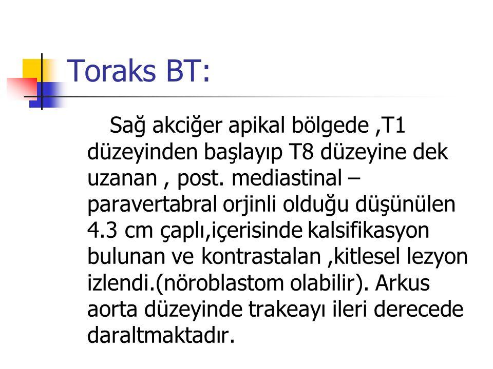Toraks BT: Sağ akciğer apikal bölgede,T1 düzeyinden başlayıp T8 düzeyine dek uzanan, post. mediastinal – paravertabral orjinli olduğu düşünülen 4.3 cm