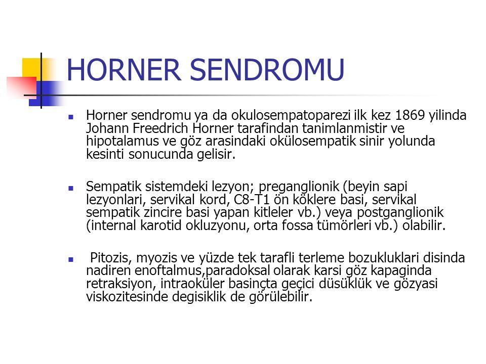 HORNER SENDROMU Horner sendromu ya da okulosempatoparezi ilk kez 1869 yilinda Johann Freedrich Horner tarafindan tanimlanmistir ve hipotalamus ve göz arasindaki okülosempatik sinir yolunda kesinti sonucunda gelisir.
