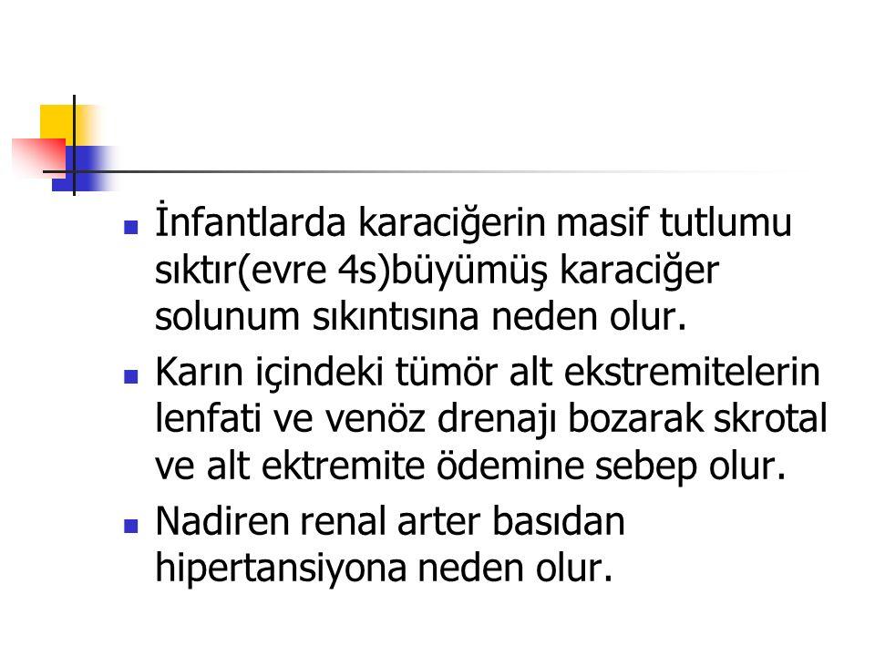İnfantlarda karaciğerin masif tutlumu sıktır(evre 4s)büyümüş karaciğer solunum sıkıntısına neden olur. Karın içindeki tümör alt ekstremitelerin lenfat