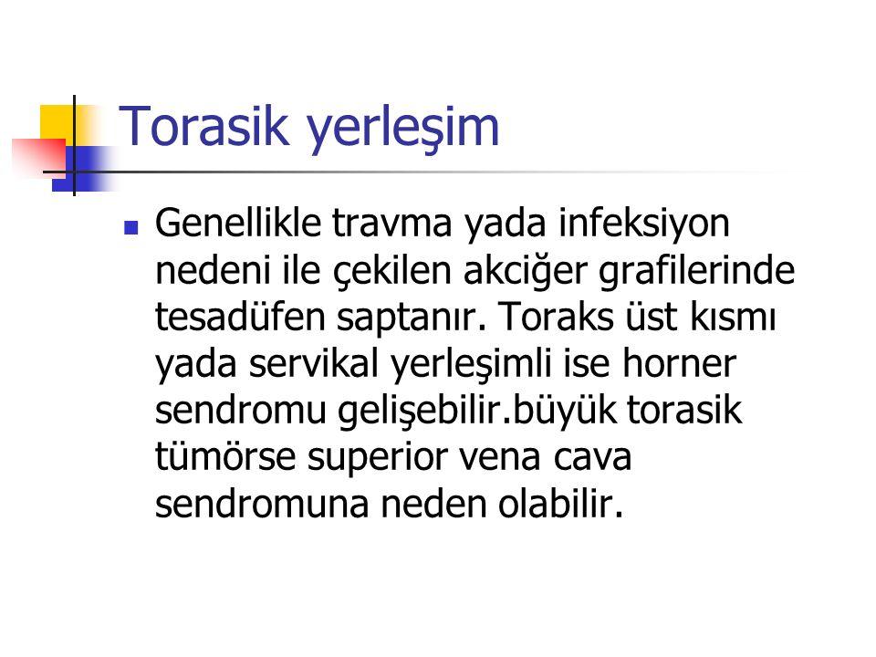 Torasik yerleşim Genellikle travma yada infeksiyon nedeni ile çekilen akciğer grafilerinde tesadüfen saptanır.