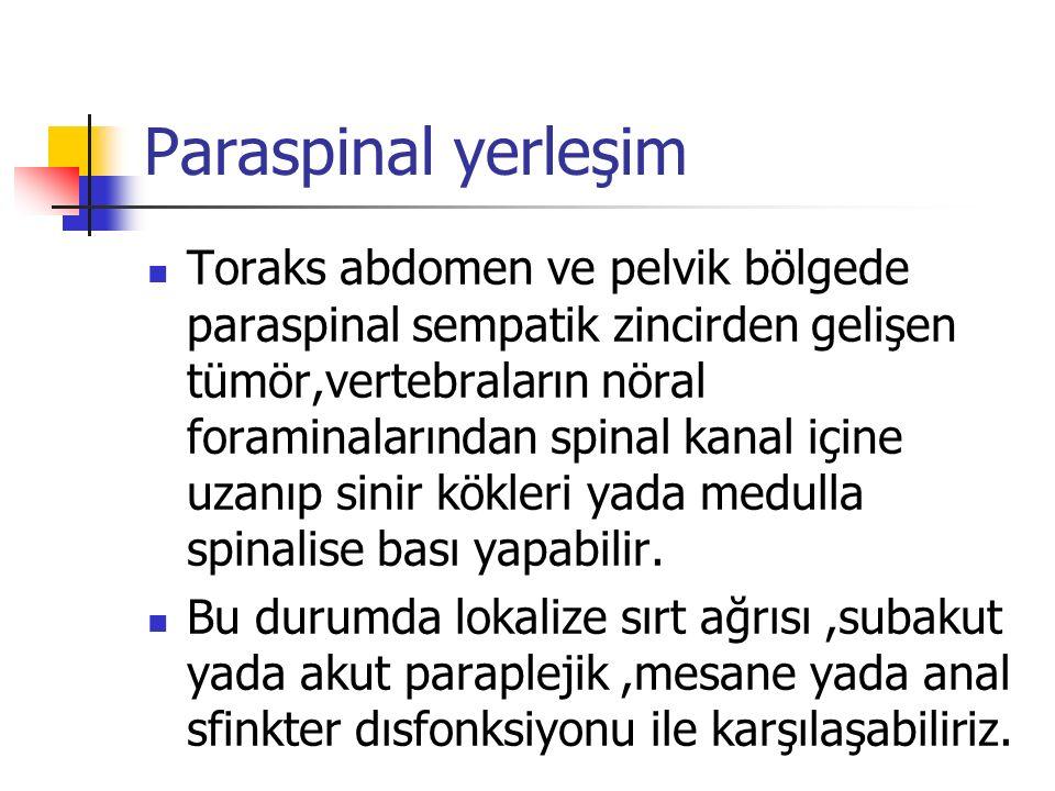Paraspinal yerleşim Toraks abdomen ve pelvik bölgede paraspinal sempatik zincirden gelişen tümör,vertebraların nöral foraminalarından spinal kanal içine uzanıp sinir kökleri yada medulla spinalise bası yapabilir.