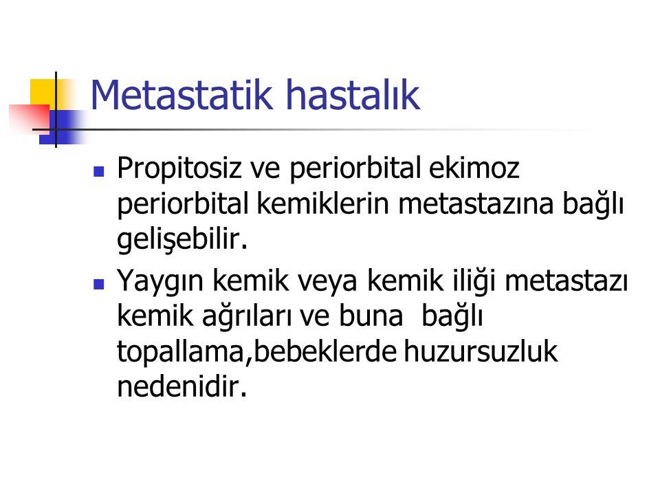 Metastatik hastalık Propitosiz ve periorbital ekimoz periorbital kemiklerin metastazına bağlı gelişebilir.