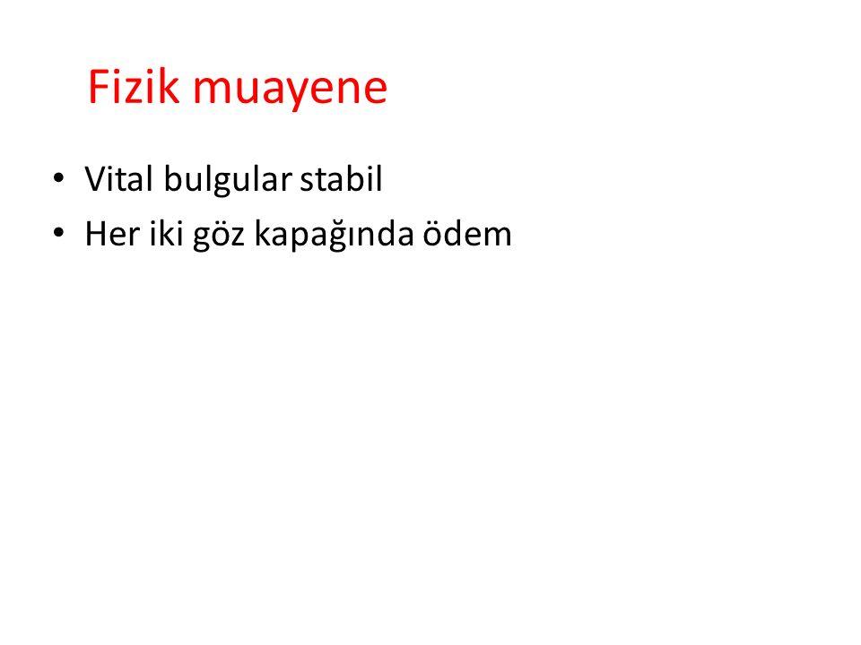 Hemogram: Hb:14 mg/dl Htc:%41 WBC:8000/mm3 PLT:510.000/mm3 MCV:81fL Eo:%0.4 CRP: 0.8 mg/dl SED: 2 mm/h Biyokimya: şeker :88mg/dl üre :13mg/dl kreat :0.5mg/dl AST :32u/L ALT:27u/L GGT :12u/L ALP:259u/L Na :145mEq/L K :4.9mEq/L Cl :108mEq/L Ca:10mg/dl t.p :6.4g/dl alb:3.8g/dl