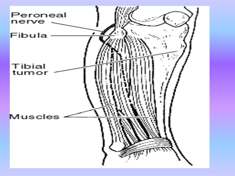 FİBRÖZ KEMİK TÜMÖRLERİ 1.Unikameral Kemik Kistleri 2.Fibröz Displazi 3.Fibroksantom(Non-Ossifiye Fibroma) 4.Ossifiye Fibroma/Adamantinoma 5.Maling Fibröz Histiositom