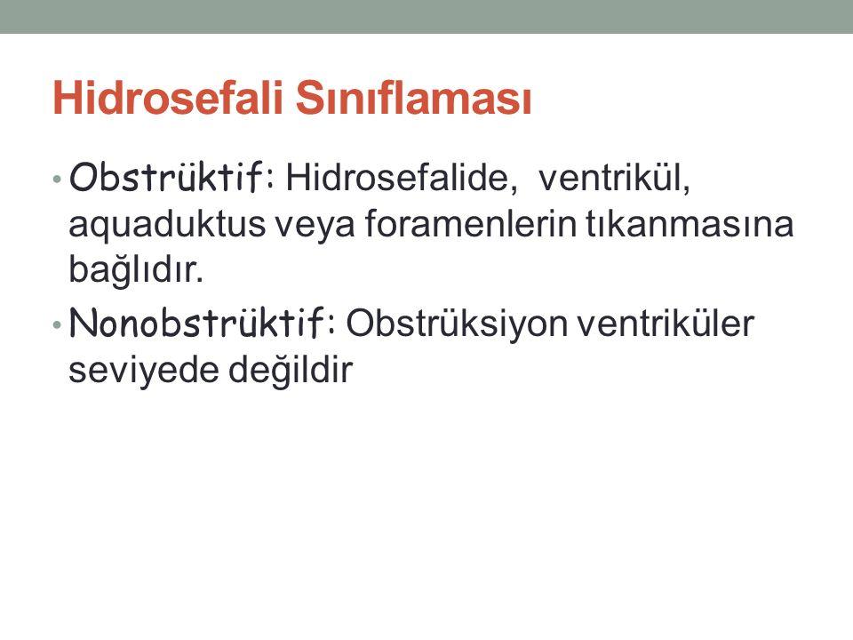 Hidrosefali Sınıflaması Obstrüktif: Hidrosefalide, ventrikül, aquaduktus veya foramenlerin tıkanmasına bağlıdır. Nonobstrüktif: Obstrüksiyon ventrikül