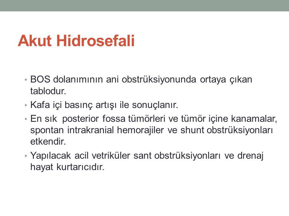 Akut Hidrosefali BOS dolanımının ani obstrüksiyonunda ortaya çıkan tablodur. Kafa içi basınç artışı ile sonuçlanır. En sık posterior fossa tümörleri v