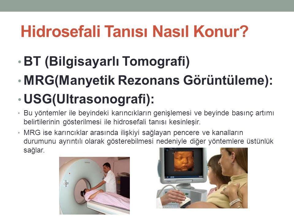 Hidrosefali Tanısı Nasıl Konur? BT (Bilgisayarlı Tomografi) MRG(Manyetik Rezonans Görüntüleme): USG(Ultrasonografi): Bu yöntemler ile beyindeki karınc