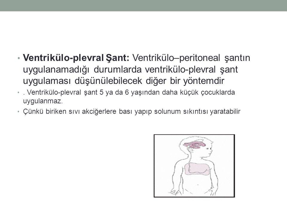 Ventrikülo-plevral Şant: Ventrikülo–peritoneal şantın uygulanamadığı durumlarda ventrikülo-plevral şant uygulaması düşünülebilecek diğer bir yöntemdir