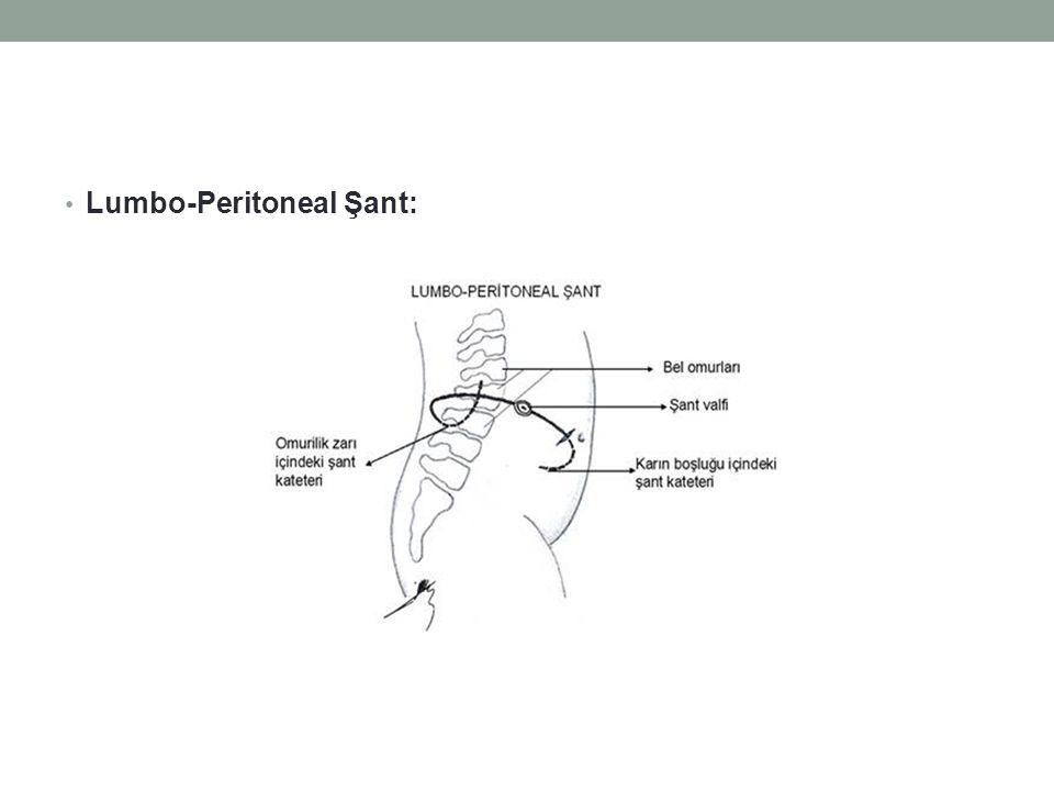 Lumbo-Peritoneal Şant: