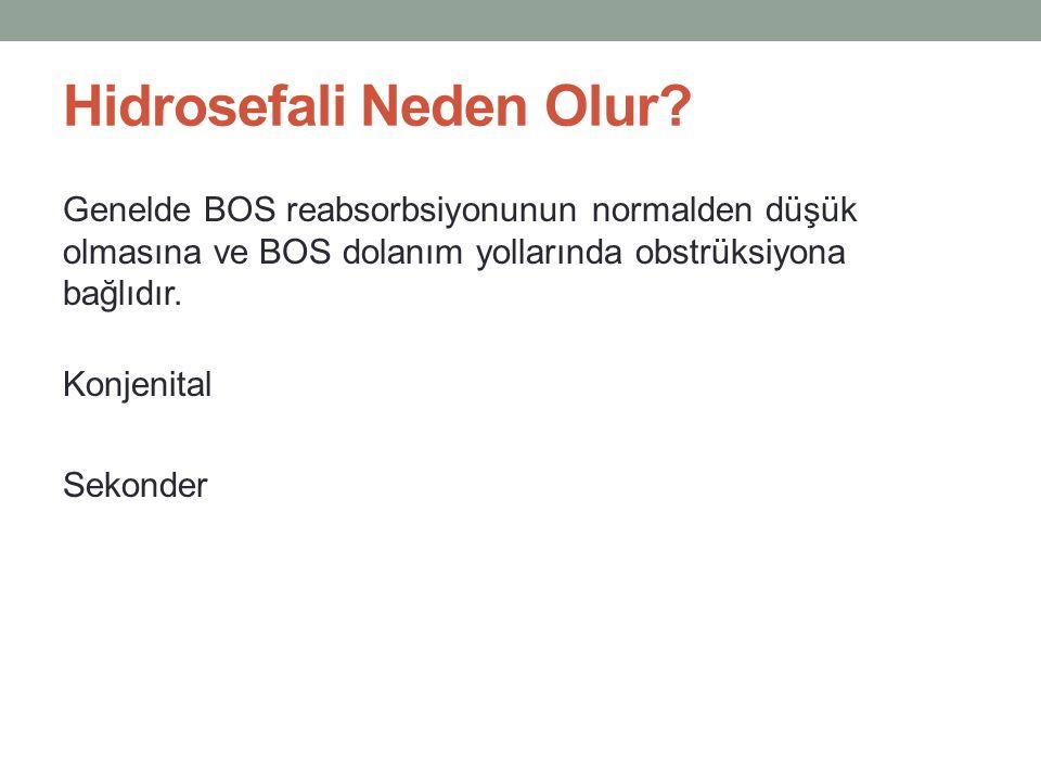 Hidrosefali Neden Olur? Genelde BOS reabsorbsiyonunun normalden düşük olmasına ve BOS dolanım yollarında obstrüksiyona bağlıdır. Konjenital Sekonder