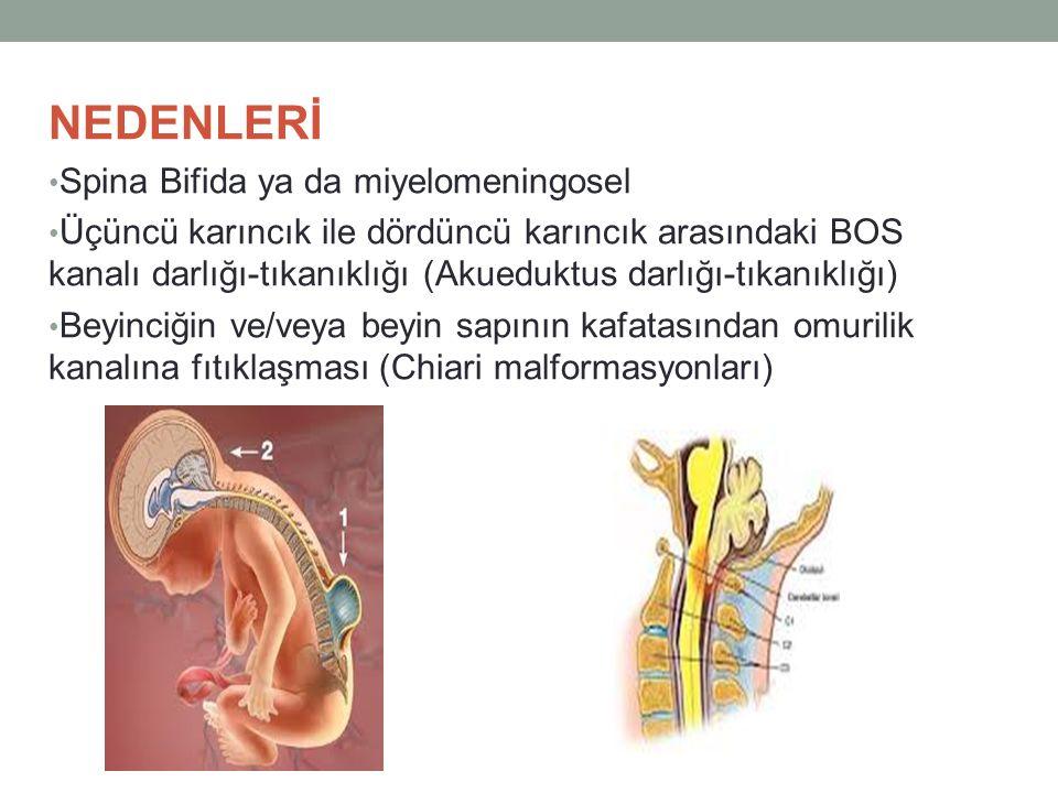 NEDENLERİ Spina Bifida ya da miyelomeningosel Üçüncü karıncık ile dördüncü karıncık arasındaki BOS kanalı darlığı-tıkanıklığı (Akueduktus darlığı-tıka