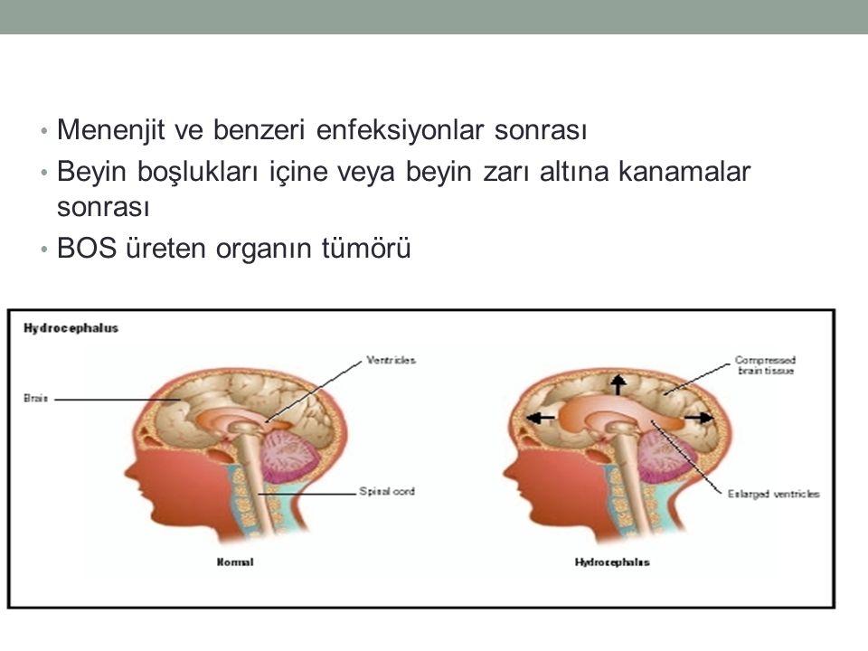 Menenjit ve benzeri enfeksiyonlar sonrası Beyin boşlukları içine veya beyin zarı altına kanamalar sonrası BOS üreten organın tümörü