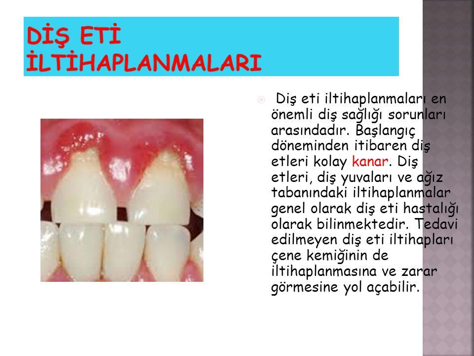  Diş eti iltihaplanmaları en önemli diş sağlığı sorunları arasındadır. Başlangıç döneminden itibaren diş etleri kolay kanar. Diş etleri, diş yuvaları