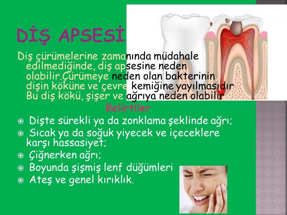Diş çürümelerine zamanında müdahale edilmediğinde, diş apsesine neden olabilir.Çürümeye neden olan bakterinin, dişin köküne ve çevre kemiğine yayılmas
