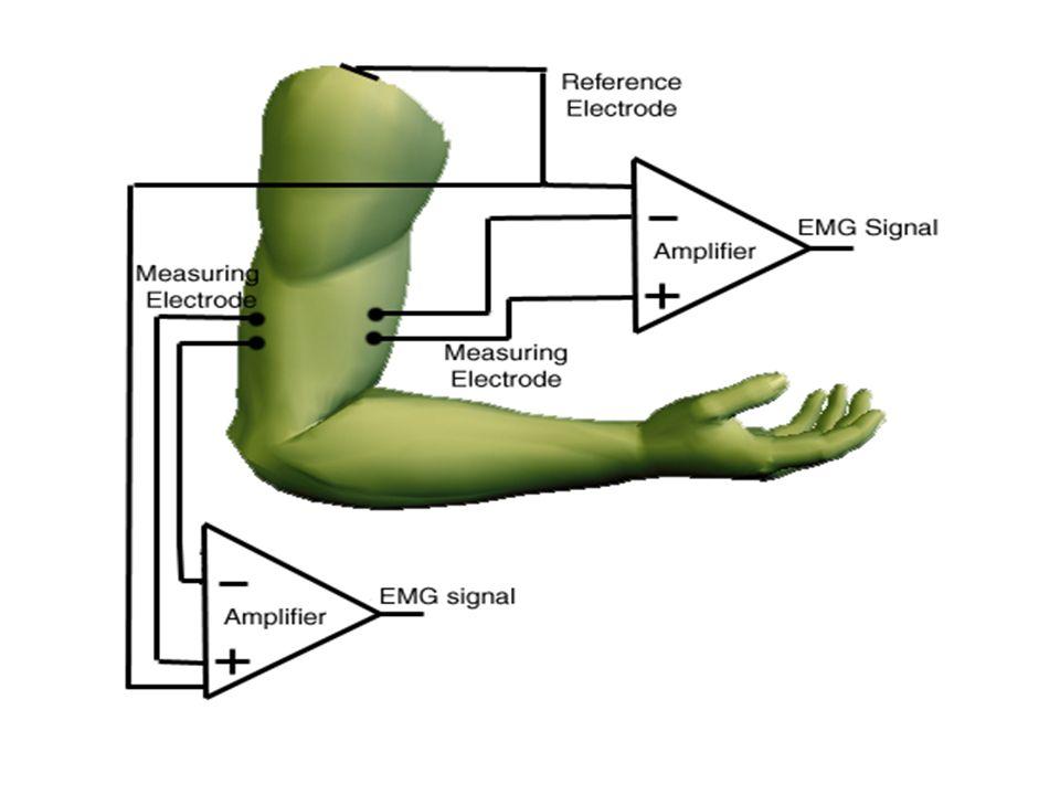 Motor Ünitesi (Motor Unit) Motor Ünitesi Aksiyon Potansiyeli- Motor Unit Action Potential… -Bir motor ünitesi, bir motor nöron ve bu nörönun donattığı iskelet kasından oluşur.