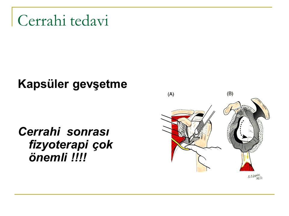 Cerrahi tedavi Kapsüler gevşetme Cerrahi sonrası fizyoterapi çok önemli !!!!