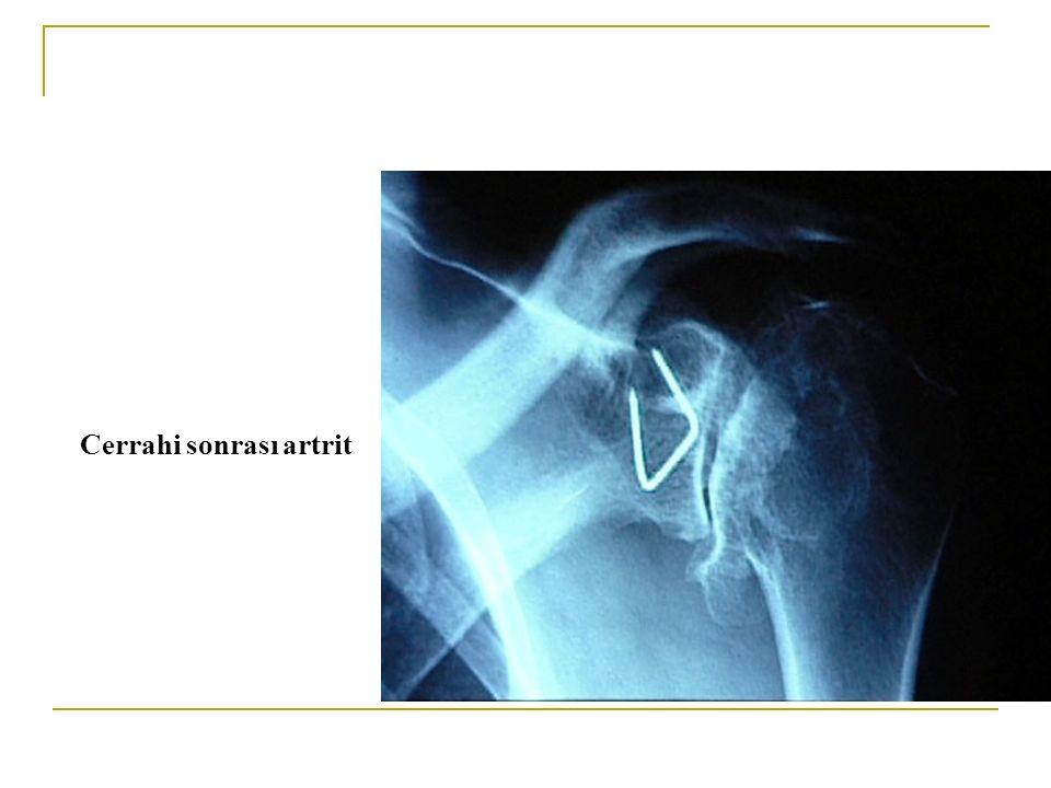 Cerrahi sonrası artrit