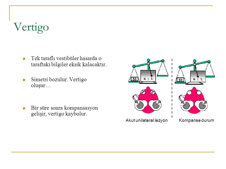 Vertigo Tek taraflı vestibüler hasarda o taraftaki bilgiler eksik kalacaktır.