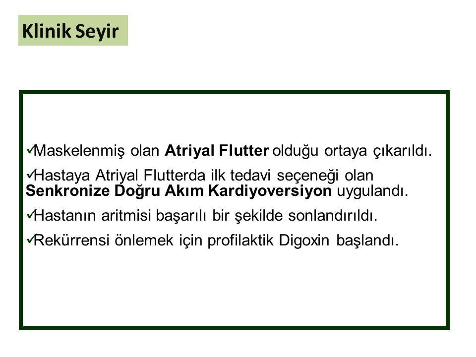 Maskelenmiş olan Atriyal Flutter olduğu ortaya çıkarıldı.