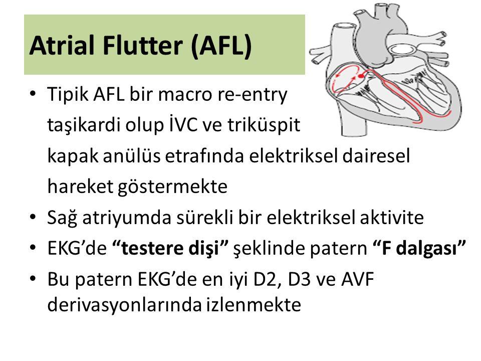 Atrial Flutter (AFL) Tipik AFL bir macro re-entry taşikardi olup İVC ve triküspit kapak anülüs etrafında elektriksel dairesel hareket göstermekte Sağ atriyumda sürekli bir elektriksel aktivite EKG'de testere dişi şeklinde patern F dalgası Bu patern EKG'de en iyi D2, D3 ve AVF derivasyonlarında izlenmekte