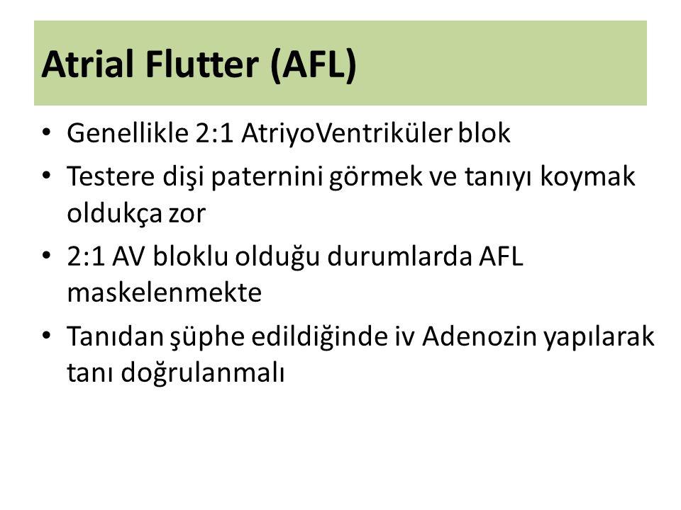 Atrial Flutter (AFL) Genellikle 2:1 AtriyoVentriküler blok Testere dişi paternini görmek ve tanıyı koymak oldukça zor 2:1 AV bloklu olduğu durumlarda AFL maskelenmekte Tanıdan şüphe edildiğinde iv Adenozin yapılarak tanı doğrulanmalı