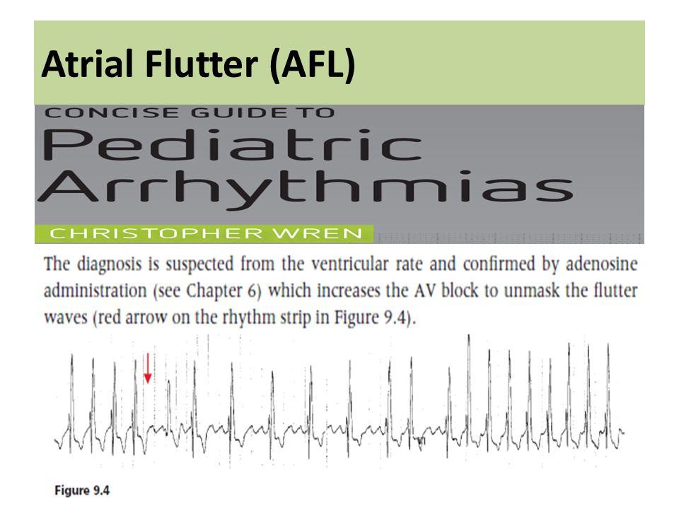 Atrial Flutter (AFL)