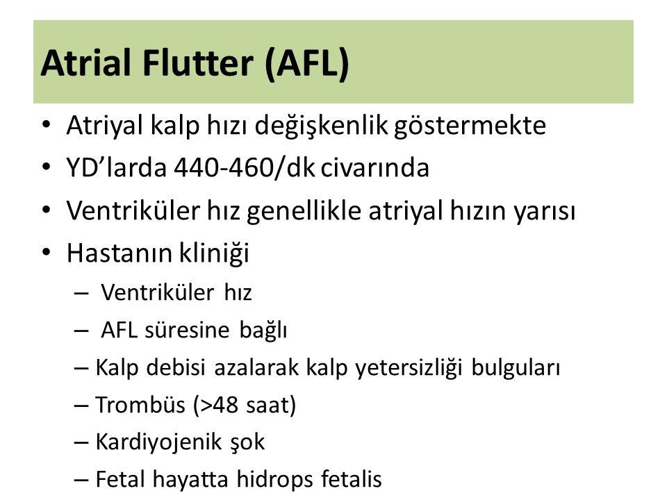Atrial Flutter (AFL) Atriyal kalp hızı değişkenlik göstermekte YD'larda 440-460/dk civarında Ventriküler hız genellikle atriyal hızın yarısı Hastanın kliniği – Ventriküler hız – AFL süresine bağlı – Kalp debisi azalarak kalp yetersizliği bulguları – Trombüs (>48 saat) – Kardiyojenik şok – Fetal hayatta hidrops fetalis