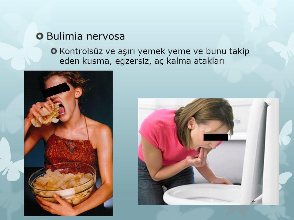  Bulimia nervosa  Kontrolsüz ve aşırı yemek yeme ve bunu takip eden kusma, egzersiz, aç kalma atakları