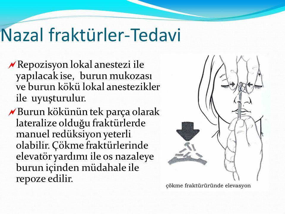 Nazal fraktürler-Tedavi  Repozisyon lokal anestezi ile yapılacak ise, burun mukozası ve burun kökü lokal anestezikler ile uyuşturulur.  Burun kökünü