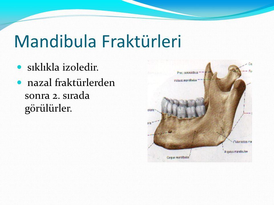 Mandibula Fraktürleri sıklıkla izoledir. nazal fraktürlerden sonra 2. sırada görülürler.