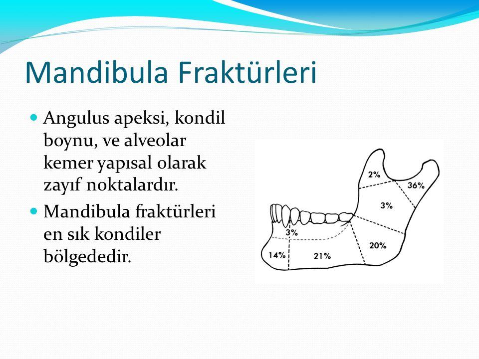 Mandibula Fraktürleri Angulus apeksi, kondil boynu, ve alveolar kemer yapısal olarak zayıf noktalardır. Mandibula fraktürleri en sık kondiler bölgeded