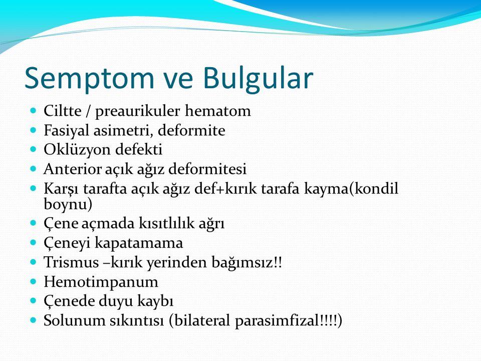 Semptom ve Bulgular Ciltte / preaurikuler hematom Fasiyal asimetri, deformite Oklüzyon defekti Anterior açık ağız deformitesi Karşı tarafta açık ağız