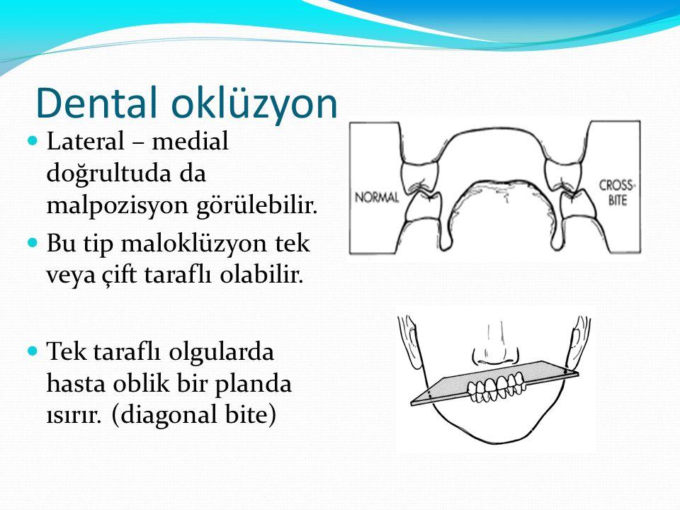 Dental oklüzyon Lateral – medial doğrultuda da malpozisyon görülebilir. Bu tip maloklüzyon tek veya çift taraflı olabilir. Tek taraflı olgularda hasta