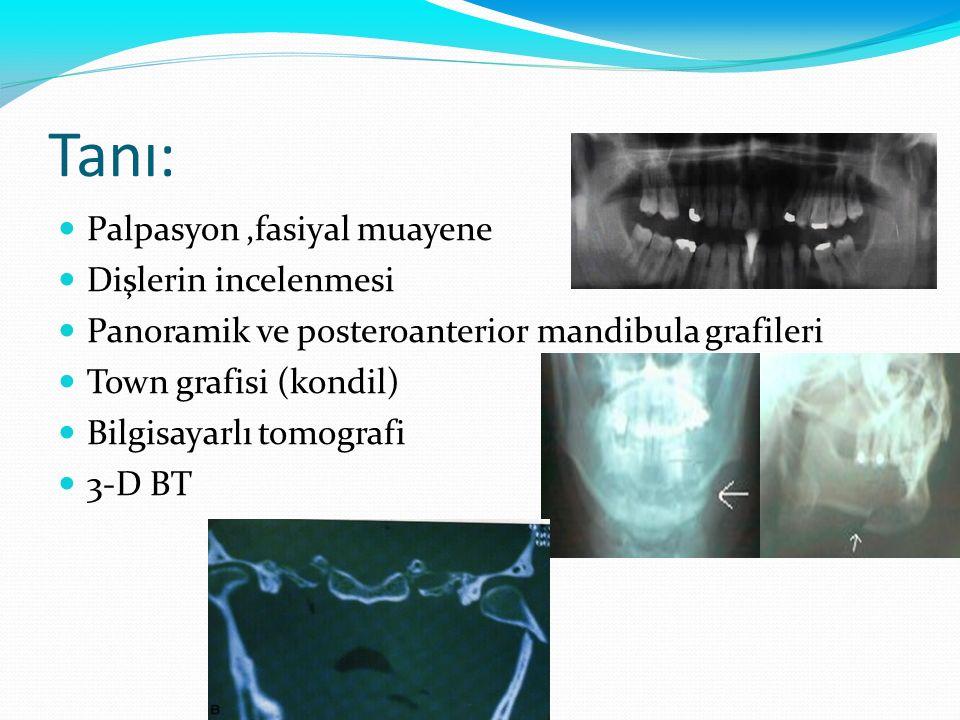 Tanı: Palpasyon,fasiyal muayene Dişlerin incelenmesi Panoramik ve posteroanterior mandibula grafileri Town grafisi (kondil) Bilgisayarlı tomografi 3-D